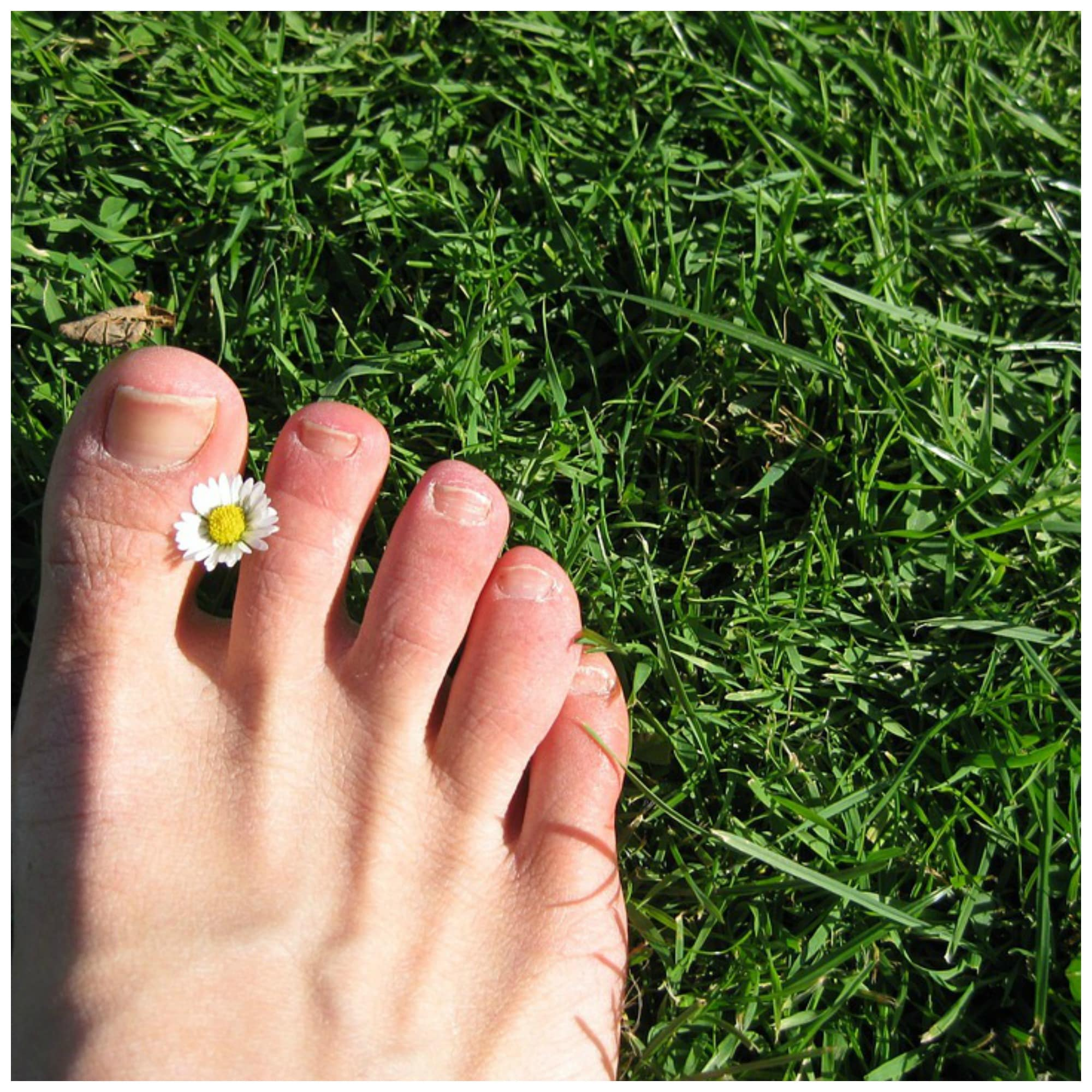 essential oils good for toenail fungus