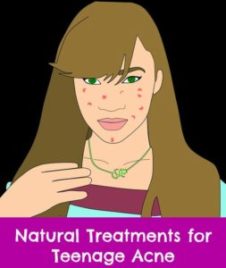 natural treatments for teenage acne