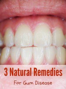 natural remedies gingivitis gum disease