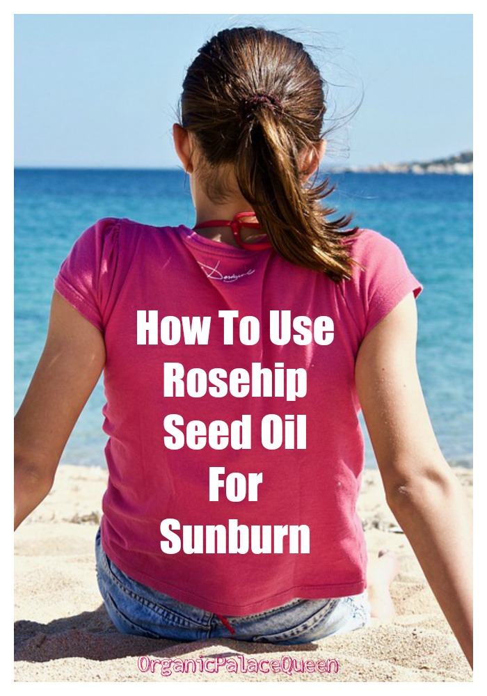 Rosehip seed oil for sunburn