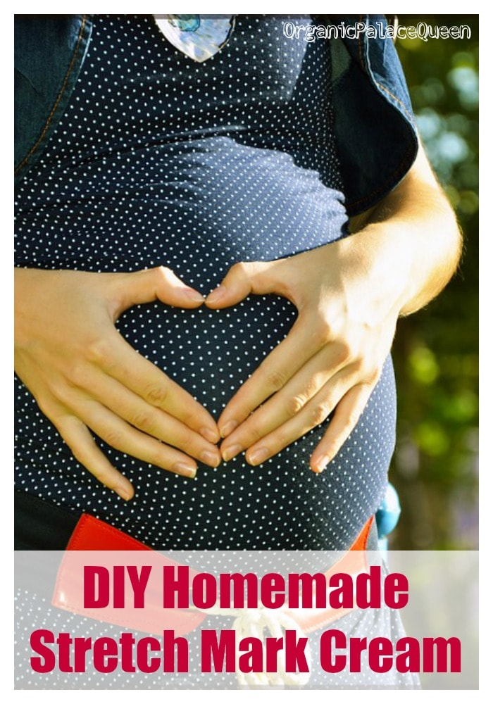 DIY homemade stretch mark cream