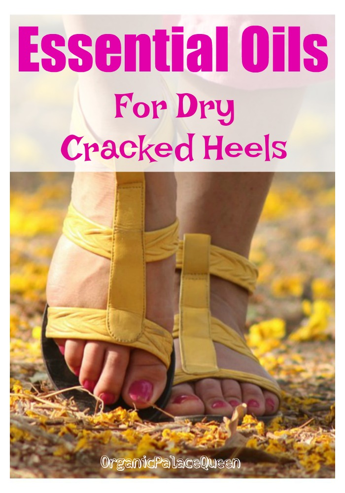Essential oils for dry cracked feet